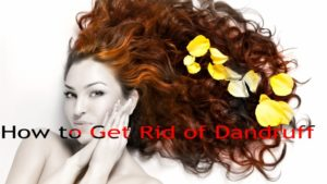 how to control dandruff